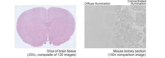 Slice of brain tissue(200x, composite of 120 images)/Diffuse illumination Concentrated illumination Mouse kidney section(150x comparison image)