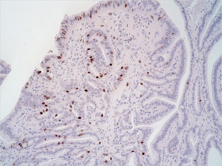 Image: Cancer cells proliferating in stomach tissue