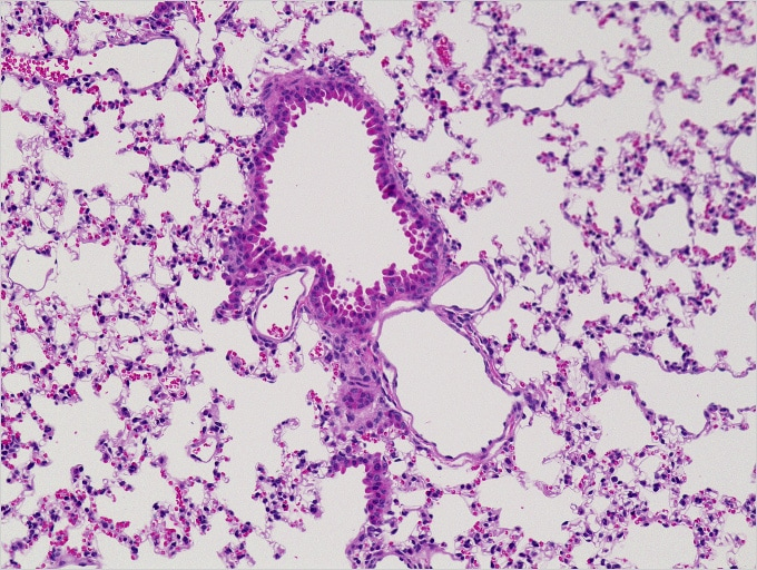 Image: Normal mouse lung (stained with H&E)...