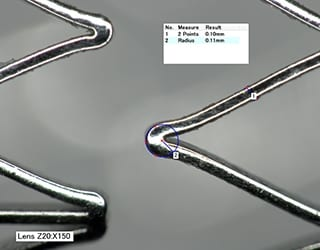 Stent strut HDR image and bend radius measurement (150x)